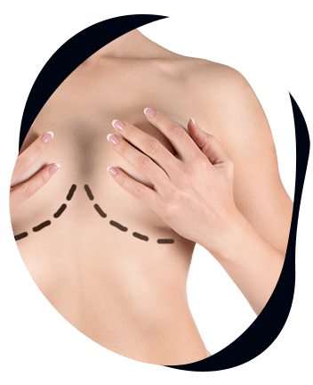 chirurgie seins tunisie